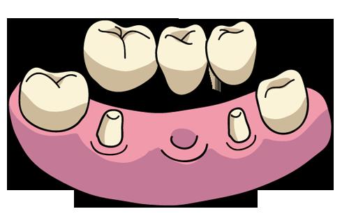 歯科 イラスト
