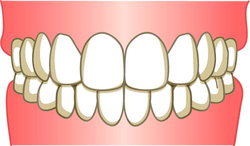 きれいな歯並び イラスト
