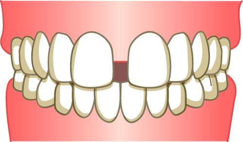 すきっ歯 イラスト