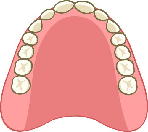 入れ歯 総義歯 イラスト