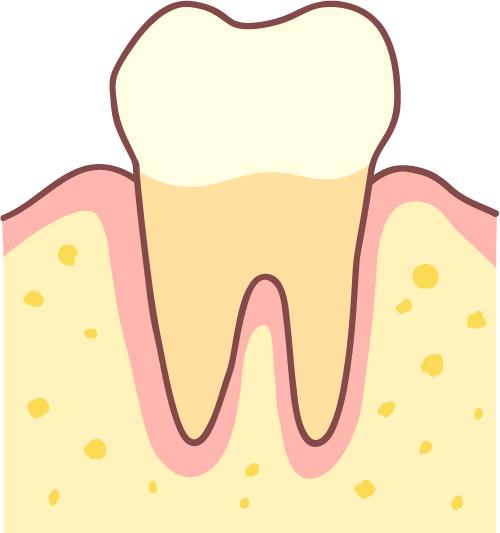 歯周病 健康な歯 イラスト