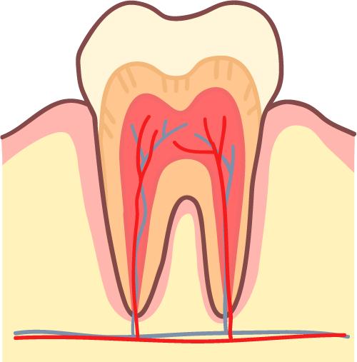 むし歯 進行C0 健康な歯 イラスト