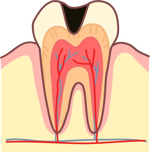 むし歯 進行C2 イラスト